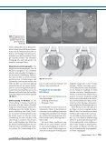 Behandlungsstandards für Pilonidalsinus und ... - Notes Chirurgie - Seite 7