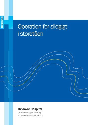 Operation for slidgigt i storetåen