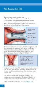 Hämorrhoiden - Chirurgische Gemeinschaftspraxis Germering - Seite 6