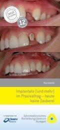 Implantate (und mehr) im Praxisalltag – heute keine ... - ZFZ Stuttgart