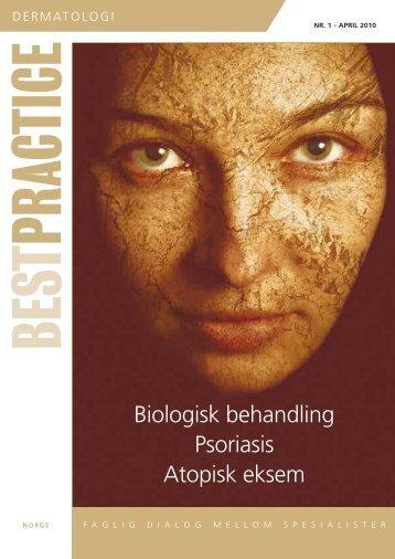Biologisk behandling Psoriasis Atopisk eksem - BESTPRACTICE.NO