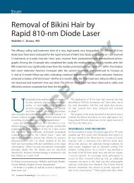 The Alexandrite Laser System with 755 nm for Fast