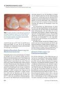 Glasionomerzemente für die Kinderzahnheilkunde - GC Europe - Seite 2