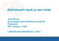 Alzheimerin tauti ja sen hoito