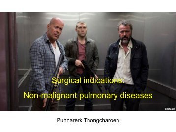 Surgical indications: Non-malignant pulmonary diseases