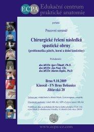 Chirurgické řešení následků spastické obrny - ECPA-CZ o.p.s.