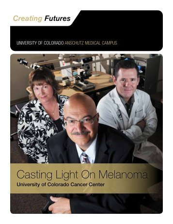 Casting Light On Melanoma - University of Colorado Foundation
