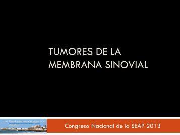 Tumores de la membrana sinovial