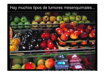 La patología molecular en la nueva clasificación de los sarcomas de ...