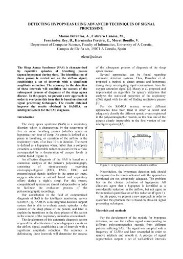 Detecting hypopneas using advanced techniques of signal processing