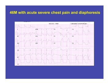 46M with acute severe chest pain and diaphoresis - Calgary ...