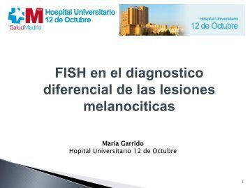 FISH en el diagnostico diferencial de las lesiones melanociticas