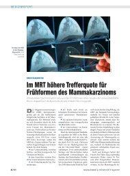 Im MRT höhere Trefferquote für Frühformen des Mammakarzinoms