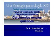 Carcinomas renales quísticos