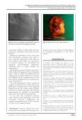 combined coronary artery bypass grafting and surgical ... - caccv.org.ar - Page 5