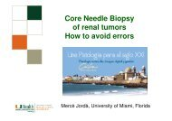 Core Needle Biopsy of renal tumors How to avoid errors