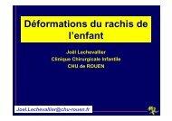 Deformations du rachis de l'enfant - CHU de Rouen