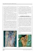 variaciones anatómicas del cayado de la vena safena ... - caccv.org.ar - Page 4