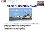 CASO CLUB PULMONAR CONGRESO NACIONAL CADIZ 2013