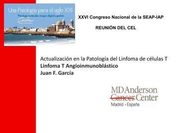 Linfoma T Angioinmunoblástico