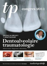 Dentoalveolaire traumatologie