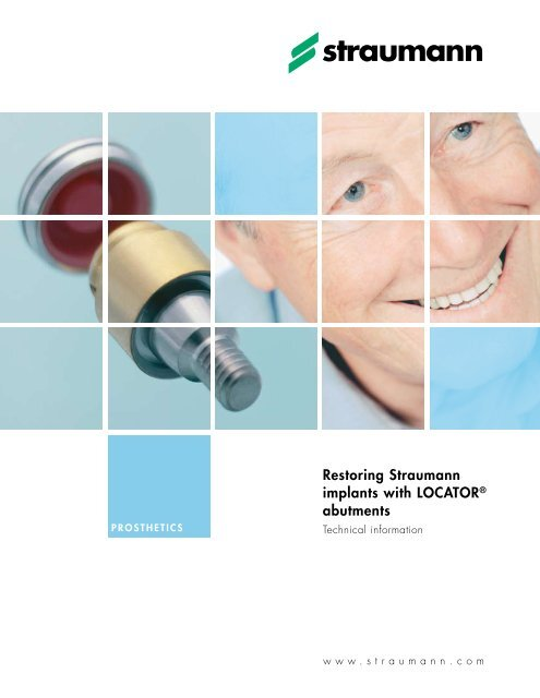 Restoring Straumann implants with LOCATOR abutments