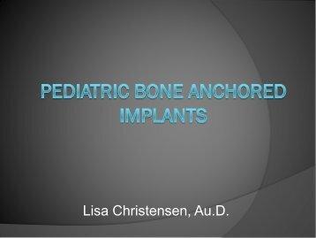 Pediatric Bone Anchored Implants - CommPartners