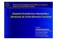 Displasia Ectodérmica Hipoidrótica (Síndrome de Christ-Siemens-Touraine)