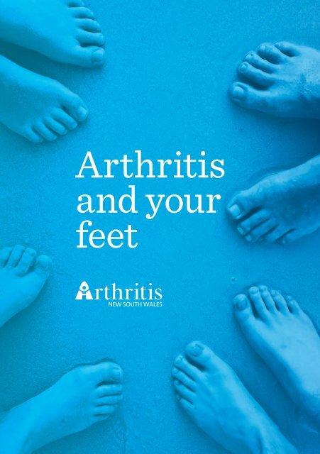Arthritis and your feet