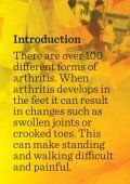 Arthritis and your feet - Page 2