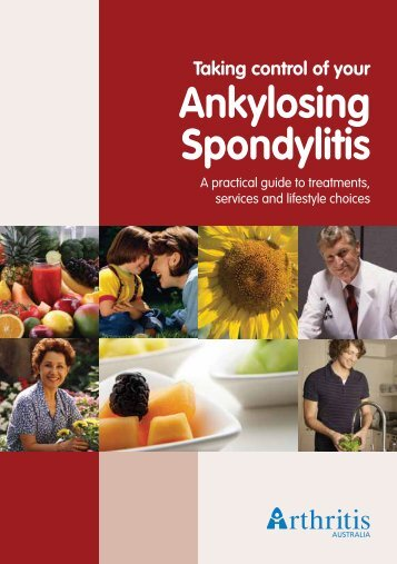 quality of life in turkish ankylosing spondylitis patients Original article quality of life in patients with takayasu's arteritis is impaired and comparable with rheumatoid arthritis and ankylosing spondylitis patients.
