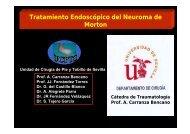 Tratamiento Endoscópico del Neuroma de Morton