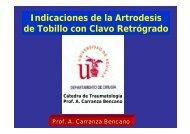 Indicaciones de la Artrodesis de Tobillo con Clavo Retrógrado