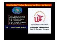 Sustitución Total de Calcáneo por Hueso de Banco Dr G del Castillo Blanco