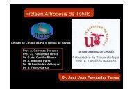 Prótesis/Artrodesis de Tobillo