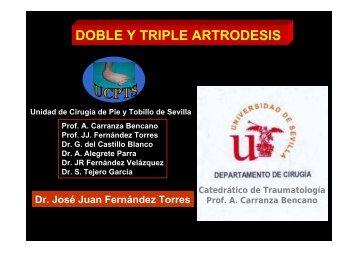 DOBLE Y TRIPLE ARTRODESIS