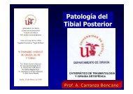 Patología del Tibial Posterior