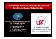 Tratamiento Profiláctico de la Artrosis de Tobillo mediante Osteotomías