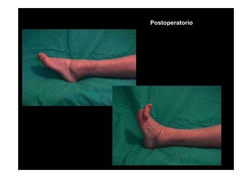de las fracturas del tobillo