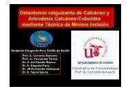 Artrodesis Calcáneo-Cuboidea mediante Técnica de Mínima Incisión