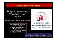"Osteotomías de Tobillo Hospital Universitario ""Virgen del Rocío"" Sevilla"