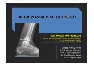 ARTROPLASTIA TOTAL DE TOBILLO