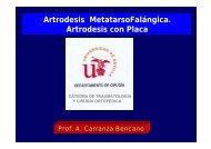 Artrodesis MetatarsoFalángica Artrodesis con Placa