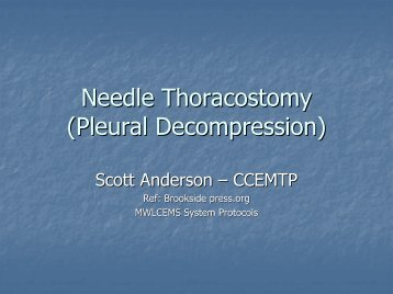 Needle Thoracostomy (Pleural Decompression)