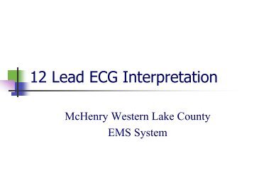 12 Lead ECG Interpretation