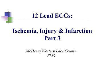 12 Lead ECGs Ischemia Injury & Infarction Part 3