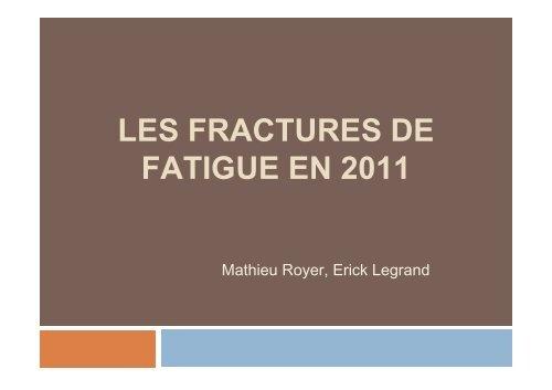 Fracture contrainte.pdf
