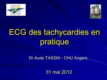 ECG des tachycardies en pratique
