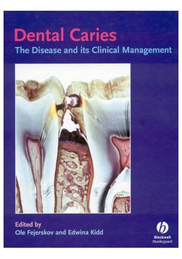 Advanced methods of caries diagnosis and quantification