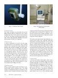 Small High Resolution Gamma Camera for Sentinel ... - TeraRecon - Page 2